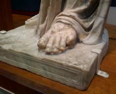 El elegante dedo de Morton
