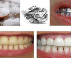 Qué pasa cuando envuelves tus dientes en papel aluminio