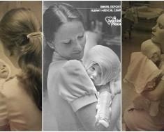 enfermera bebe quemado 1977
