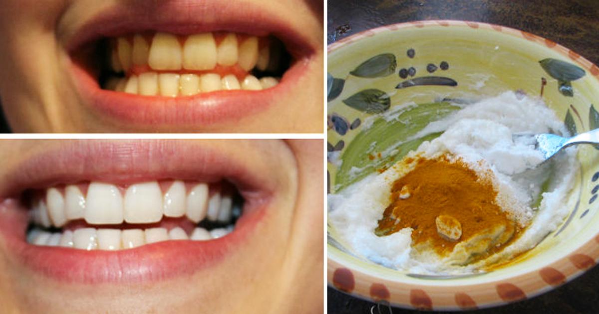 Esta pasta de dientes casera de cúrcuma blanquea tus dientes en 4 minutos ¡Increíble!