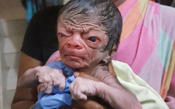 Nace bebé con rostro de un señor de 80 años y un cuerpo lleno de pelos