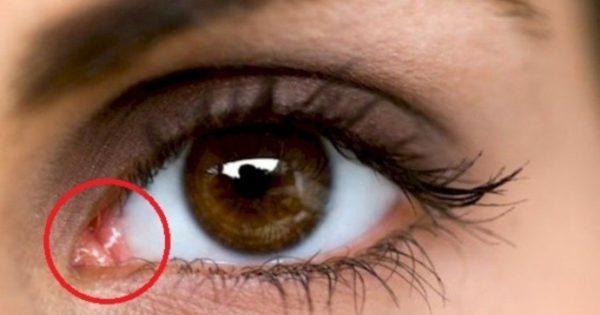 ¿Tienes esto en la esquina de tus ojos?