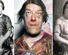 El doctor alemán se quedó paralizado al ver su rostro. Nadie sabía por lo que esta mujer había pasado