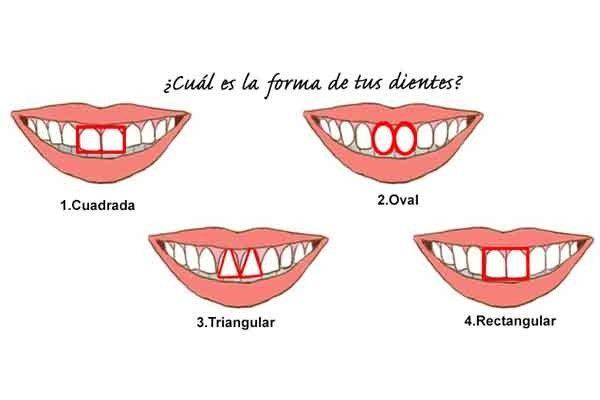 Dime como tienes tus dientes y te diré como eres