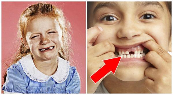 Este es el motivo por el que no deberías tirar los dientes de leche de tus hijos