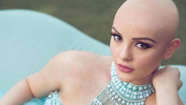 Luego de descubrirse su terrible secreto, esta modelo dejó de ser rica y famosa