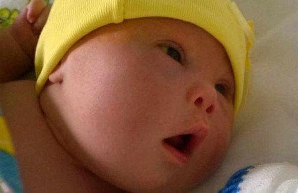 Se horroriza al ver la cara de su bebé por 1ª vez. Lo abandona de inmediato y se separa del marido