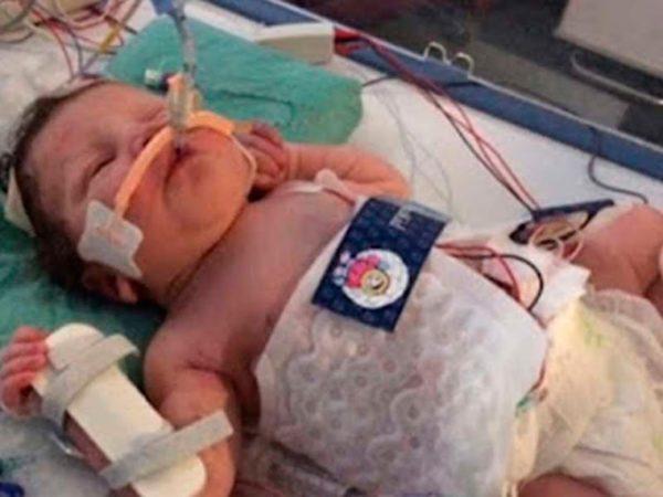 A los 5 meses nació muerta, pero lograron revivirla. Nadie puede creer cómo luce hoy