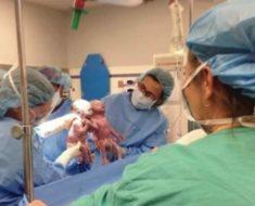 Madre ve llorar a los médicos, mira de cerca a los bebés y entiende lo que está pasando