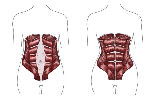 """El simple ejercicio que elimina la """"pancita de embarazada"""""""