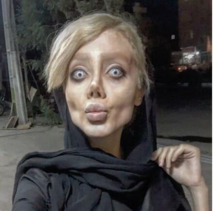 Se hizo 50 cirugías plásticas y perdió 40 kg – todo para verse como su ídolo Angelina Jolie