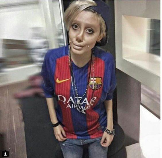 La verdadera historia detrás de la joven que pasó por 50 cirugías…