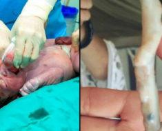 Médicos creen que el bebé nació sano, miran el cordón umbilical otra vez y entienden lo increíble