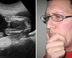 Padre se enfada al ver nacer a su hijo y entonces el doctor revela un vergonzoso detalle sobre su vida sexual
