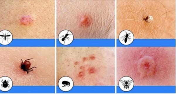 Conocer estas 10 picaduras de insectos podría salvarte la vida