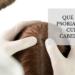Qué es la psoriasis del cuero cabelludo